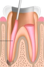 Füllung Wurzelkanal bei Wurzelkanalbehandlung